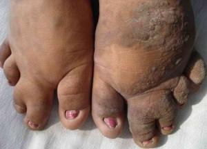 Klippel-Trenaunay Syndrome